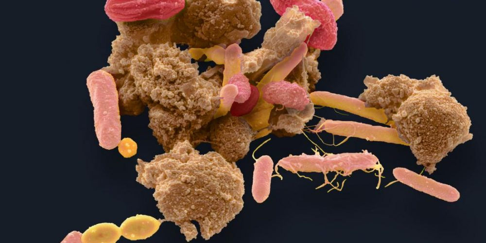 Nanoparticles in food can alter the behavior of gut bacteria