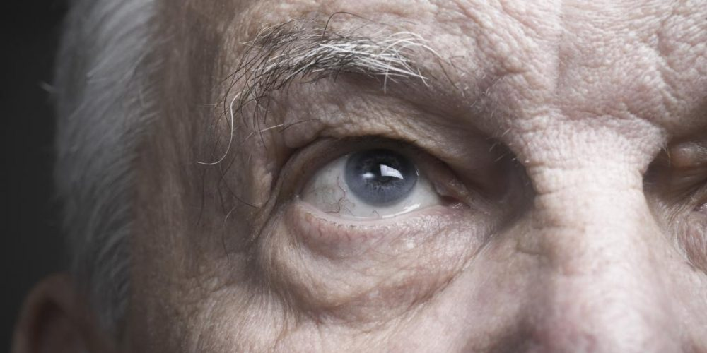 Stroke: Rewiring eye-brain connection may restore vision