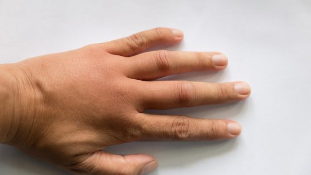 Causes of swollen hands