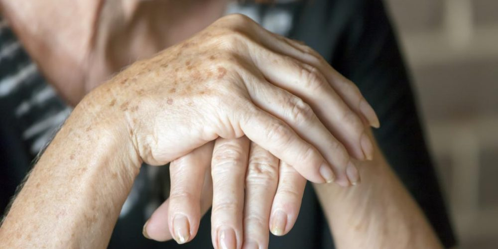 Could vitamin D help to keep rheumatoid arthritis at bay?