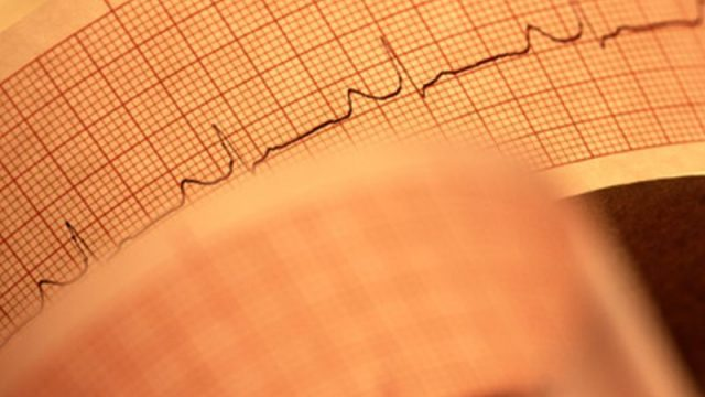 A-Fib Can Raise Dementia Risk, Even in Absence of Stroke