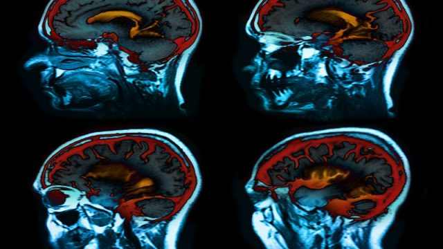 Blood Test Might Yield Early Warning of Alzheimer's