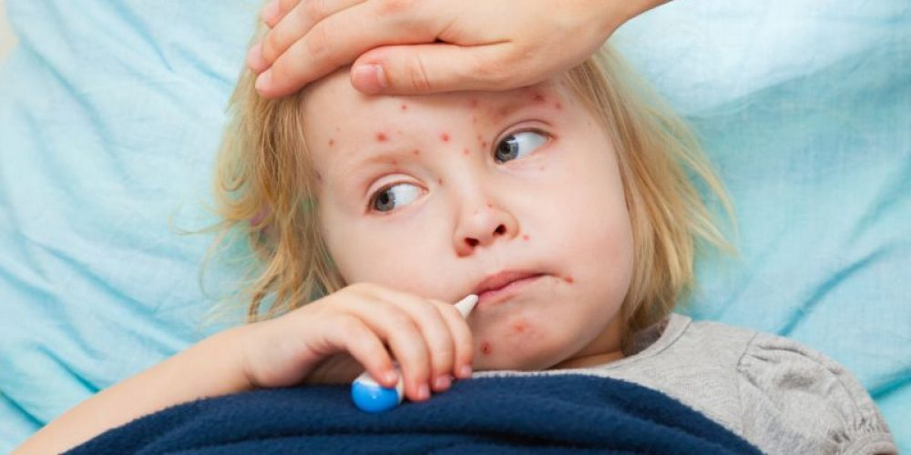 California Parents Are Getting Around Vaccine Law, Fueling Measles Outbreaks