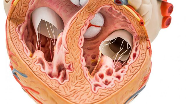 How calcium in coronary arteries can predict future heart health