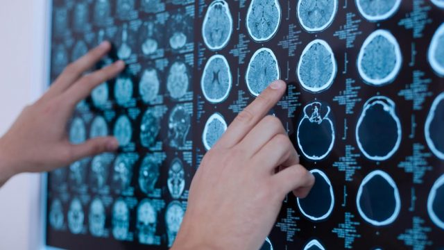 How ultrasound could help curb Parkinson's