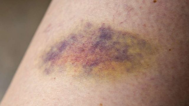 What to know about bruising easily