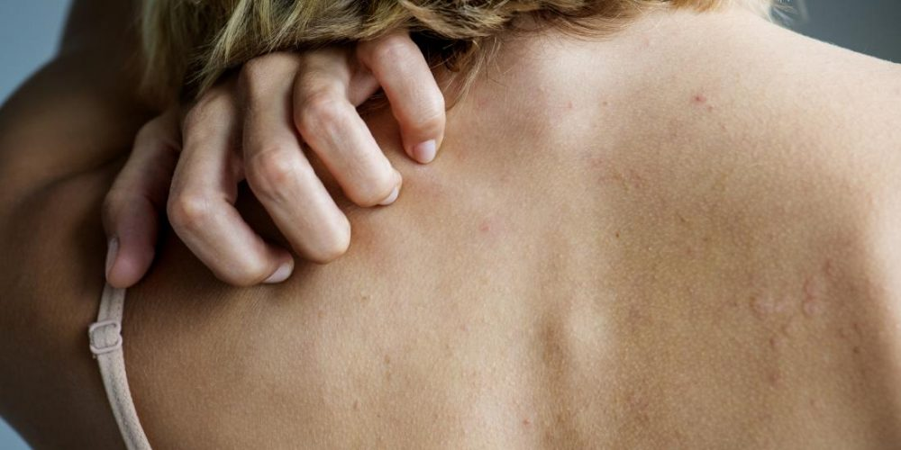 What to know about lichen planus and psoriasis