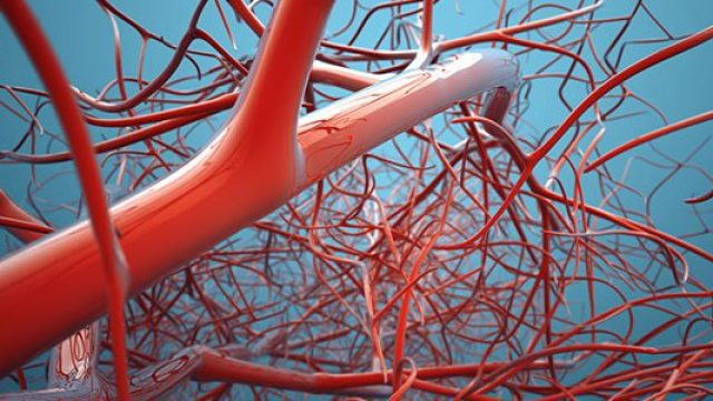 Deep Vein Thrombosis (DVT, Blood Clot in the Legs)