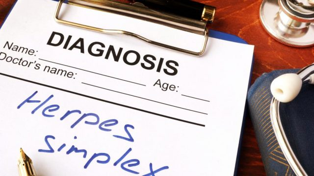 Herpes may account for 50 percent of Alzheimer's cases