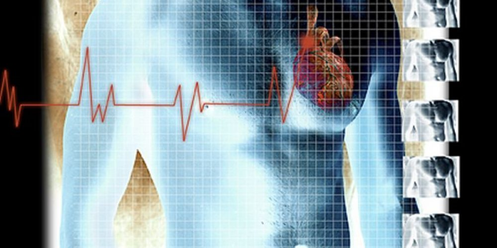 HIV Patients More Likely to Have Heart Troubles, But Less Access to Care
