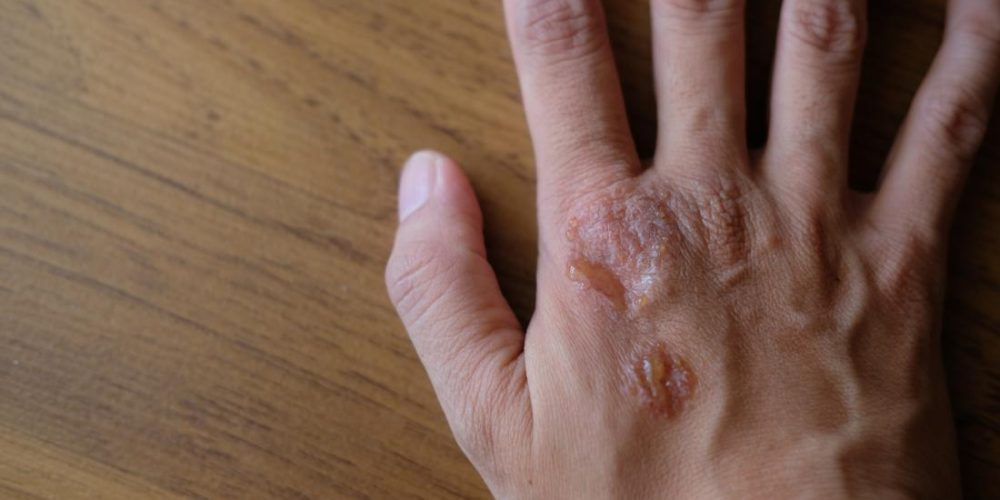 How are psoriasis and HIV related?