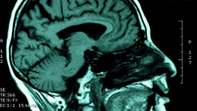 Only Spoken Words Processed in Newly Discovered Brain Region