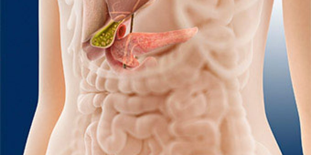 Pancreatitis (Acute, Chronic) Symptoms, Causes, Diet, and Treatment