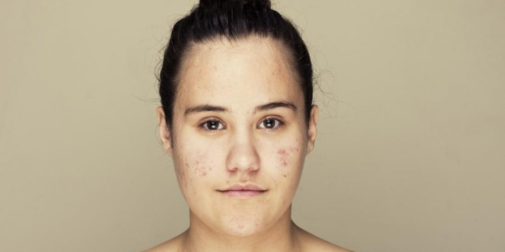 Acne: How common drug changes skin microbiome