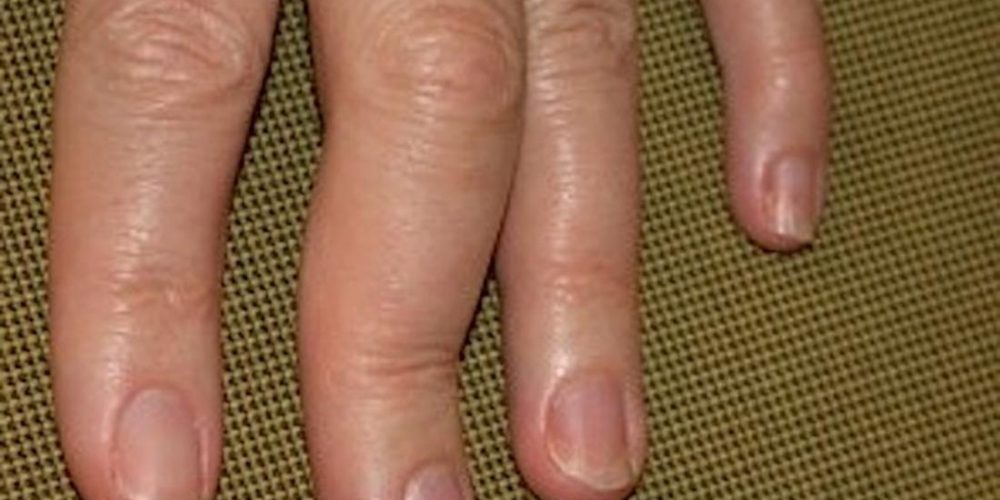 How does psoriatic arthritis affect the hands?