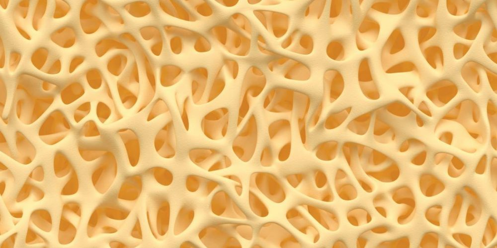Osteoporosis: Could probiotics protect bone health?