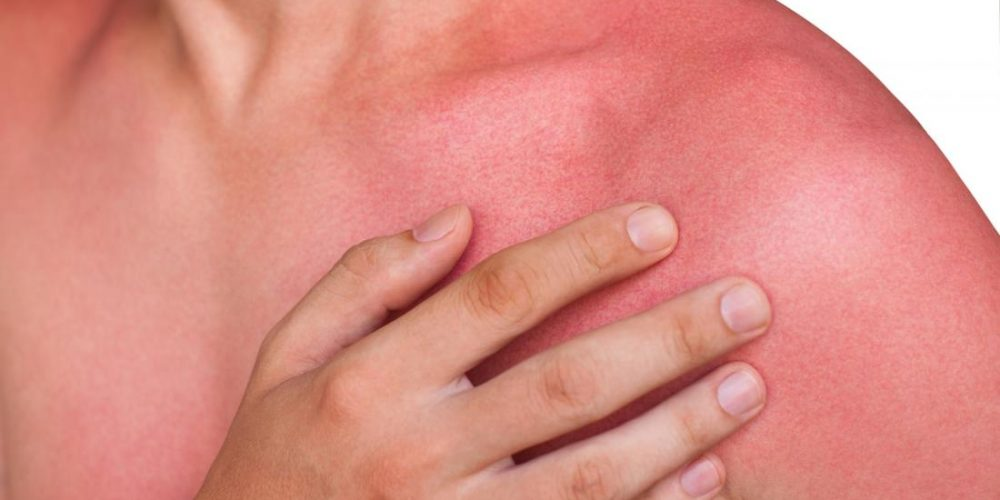 What can cause red skin?
