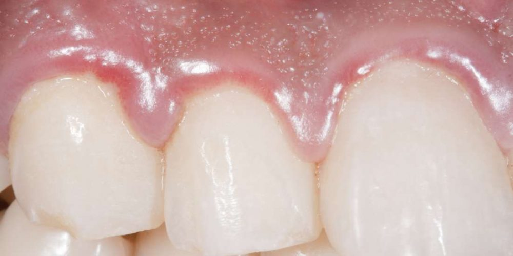 What to do about swollen gums