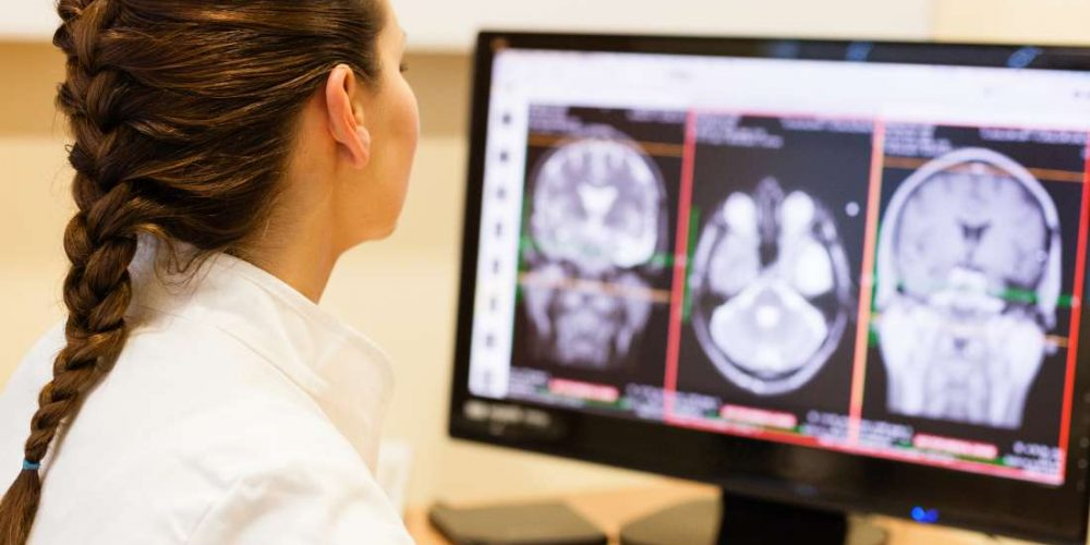 What to know about brain aneurysms