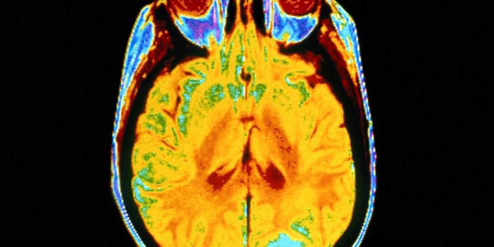 Deep Brain 'Zap' Restores Vivid Memories to Alzheimer's Patients