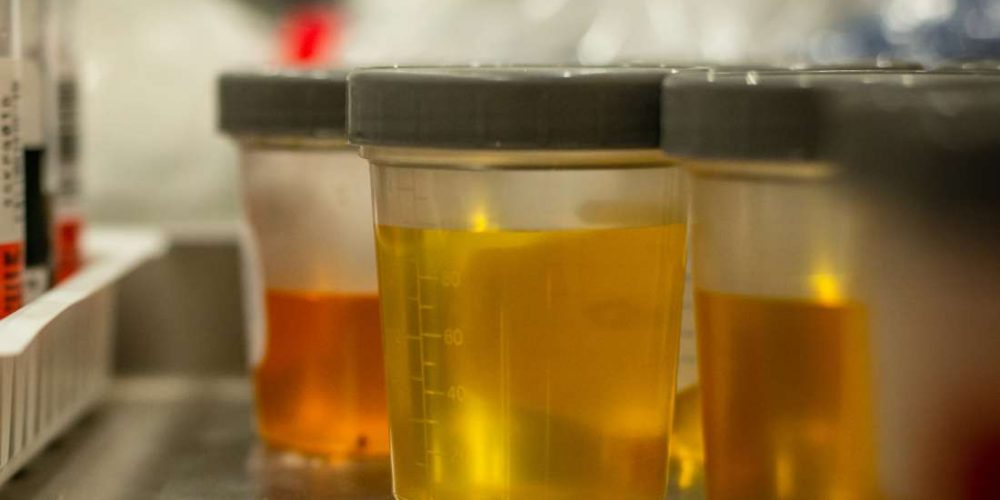 Everything you need to know about urinalysis