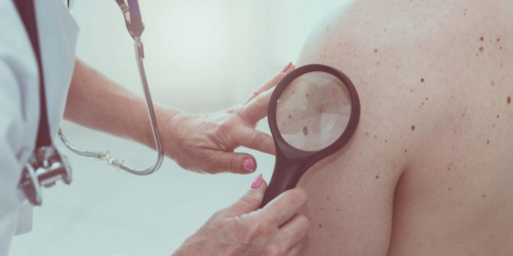 Existing antibiotic could help treat melanoma