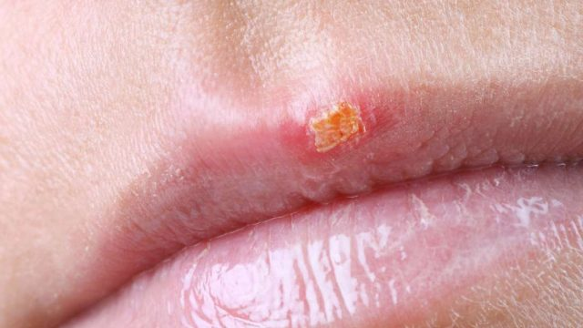How long are cold sores contagious for?