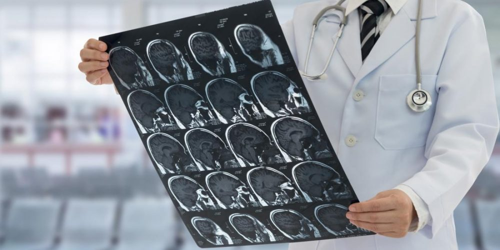 Melanoma: Immunotherapy for brain metastases 'doubles survival'