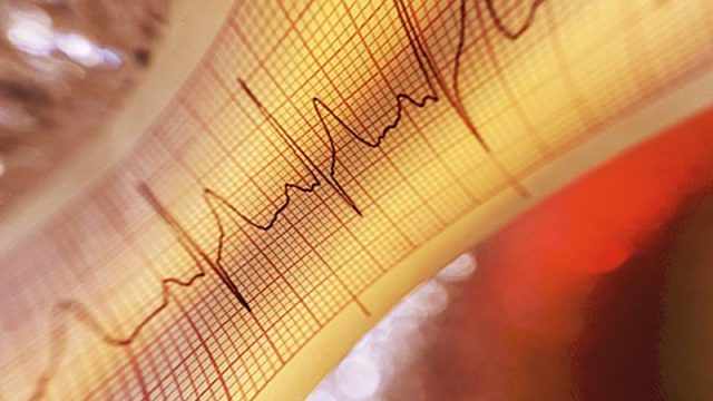 Radiation Rx Might Ease a Dangerous Irregular Heart Beat