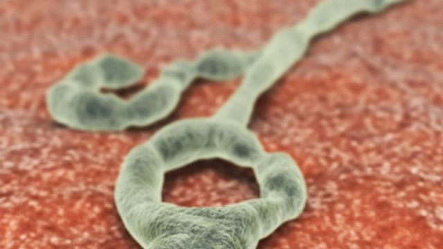 Tiny Genetic Tweak May Stop Ebola Virus in Its Tracks