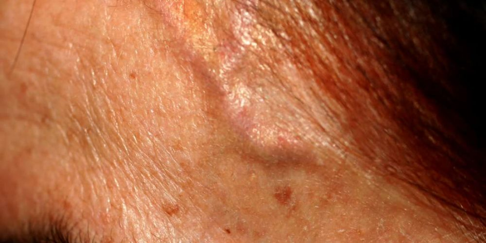 What to know about forehead veins