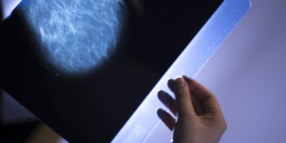 Breast cancer: How fast does it spread?