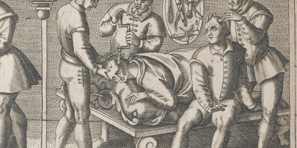 Curiosities of medical history: Trepanation