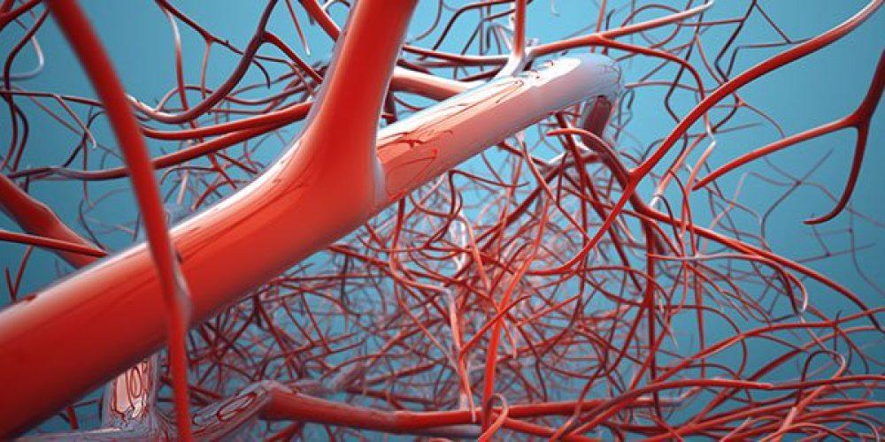 Deep Vein Thrombosis (DVT, Blood Clot in the Legs)