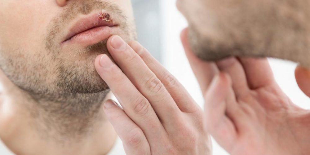 Herpes simplex: Everything you need to know