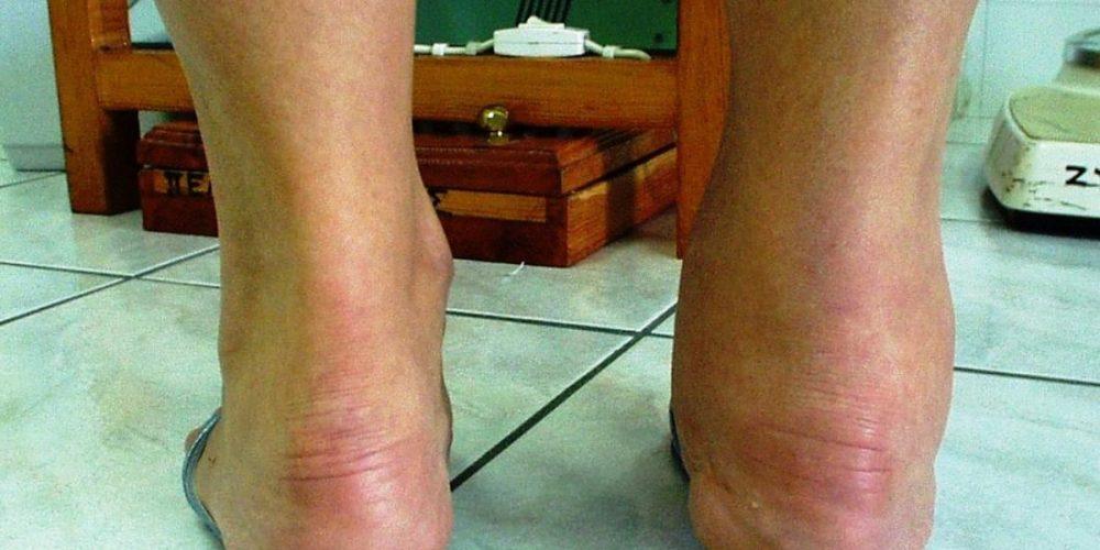 How does rheumatoid arthritis affect the ankles?