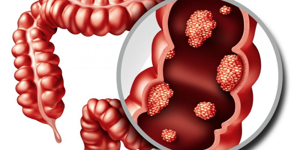 New colon cancer drugs may arise from protein discovery