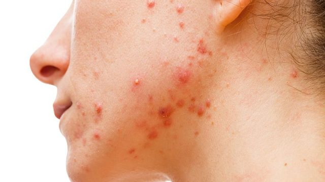 What Foods Are Most Likely to Cause Acne Breakouts?