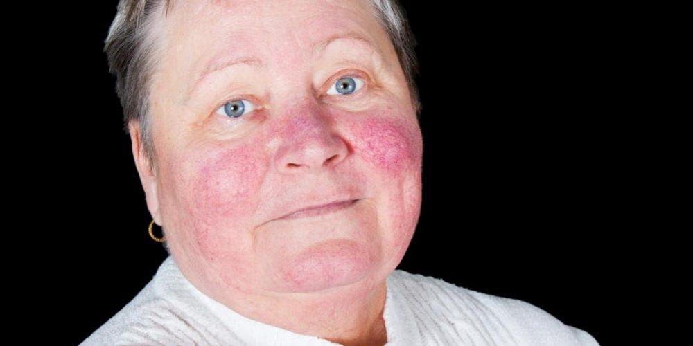 What is a malar rash?