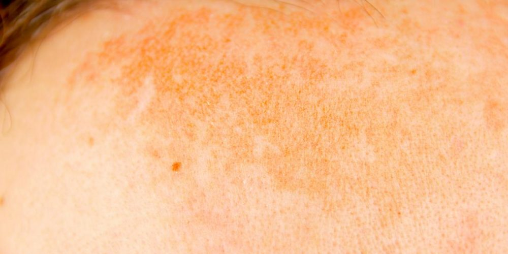 What to know about hyperpigmentation