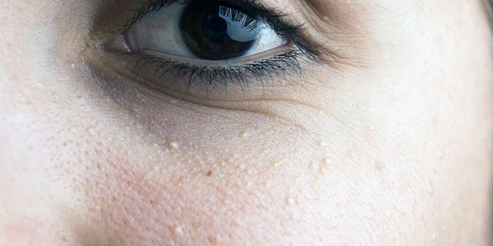 What to know about milia under the eyes