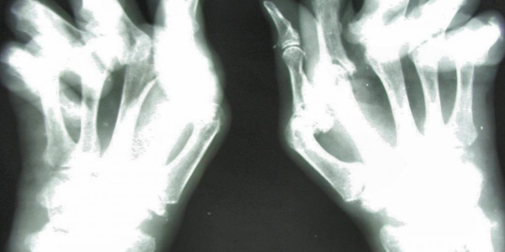 What to know about psoriatic arthritis mutilans
