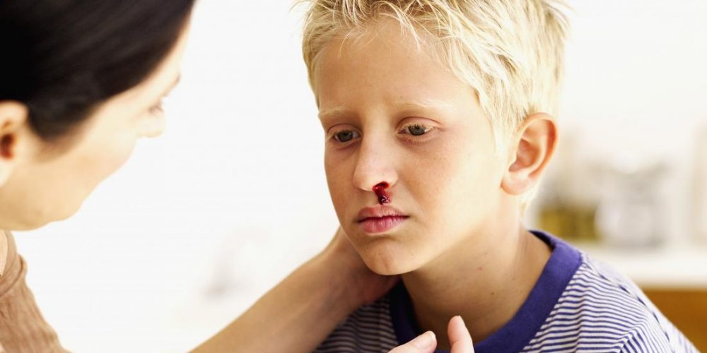 When to see a doctor if a child has a nosebleed