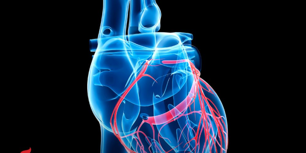 AHA News: Potentially Fatal Buildup of Proteins in the Heart Often Goes Undiagnosed