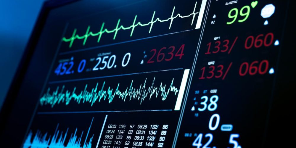 AI-enhanced ECGs may soon assess overall health