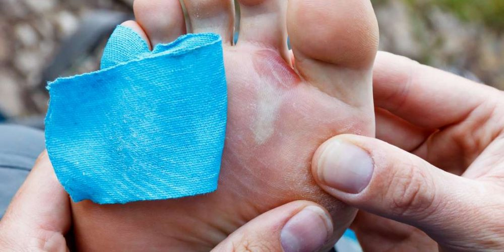 Can you safely pop a blister?