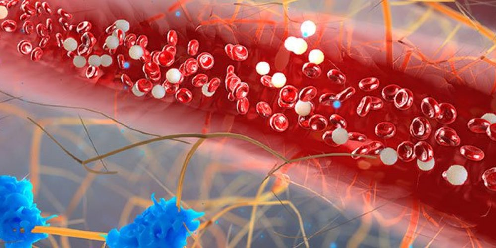 How to Lower Triglycerides Naturally
