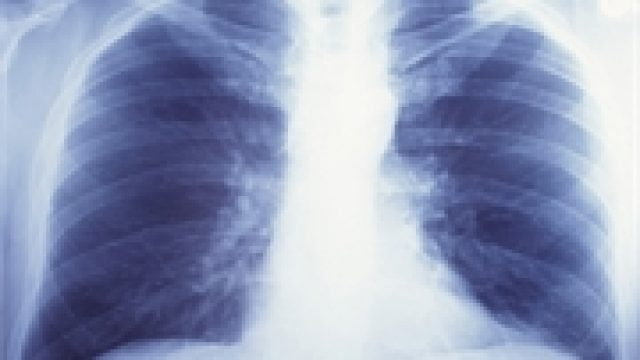 Lung Cancer Report Delivers Good, Bad News