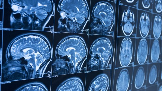 New approach may save brain cells in neurodegenerative diseases