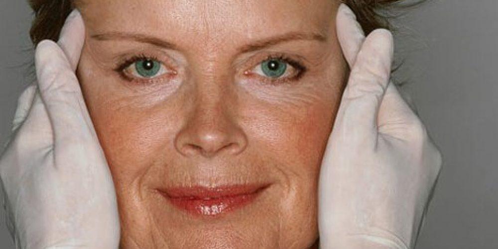 onabotulinumtoxinA, Botox, Botox Cosmetic